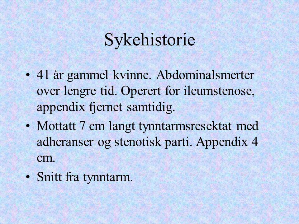 Sykehistorie 41 år gammel kvinne. Abdominalsmerter over lengre tid. Operert for ileumstenose, appendix fjernet samtidig.