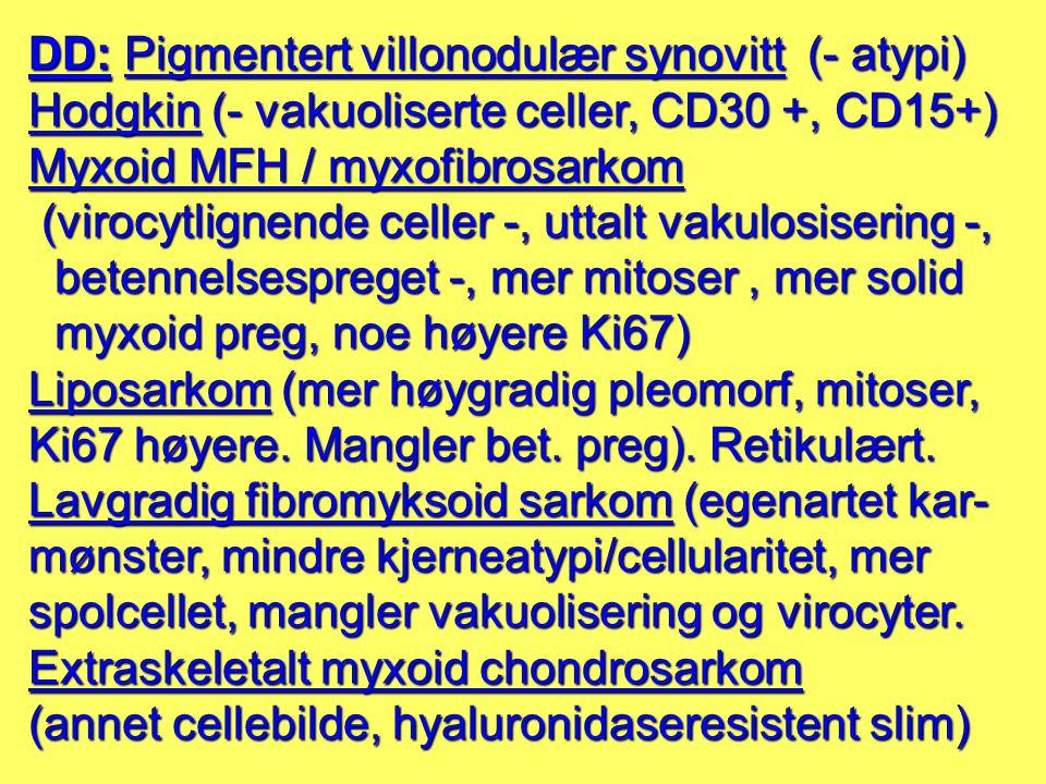 DD: Pigmentert villonodulær synovitt (- atypi)