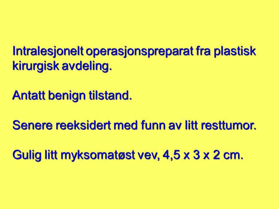 Intralesjonelt operasjonspreparat fra plastisk