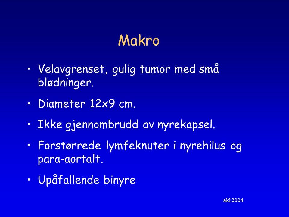 Makro Velavgrenset, gulig tumor med små blødninger. Diameter 12x9 cm.