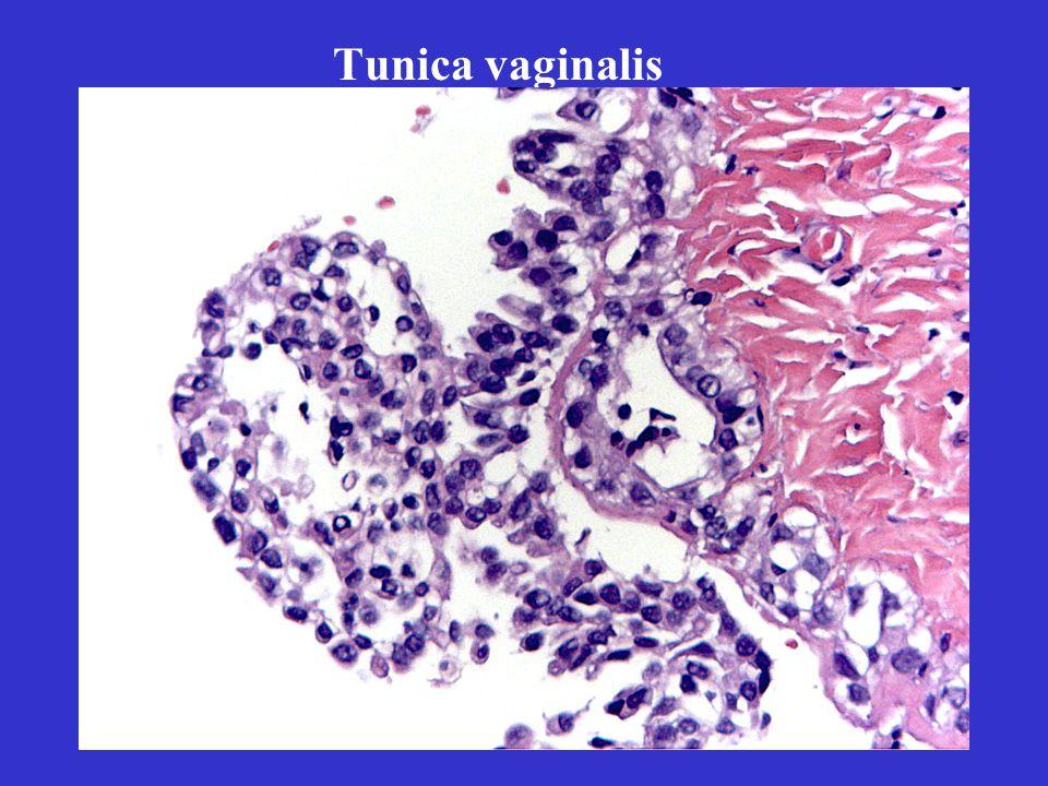 Tunica vaginalis