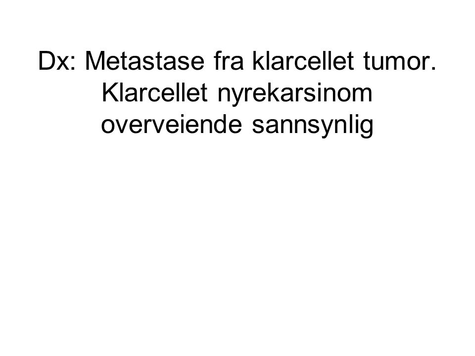 Dx: Metastase fra klarcellet tumor