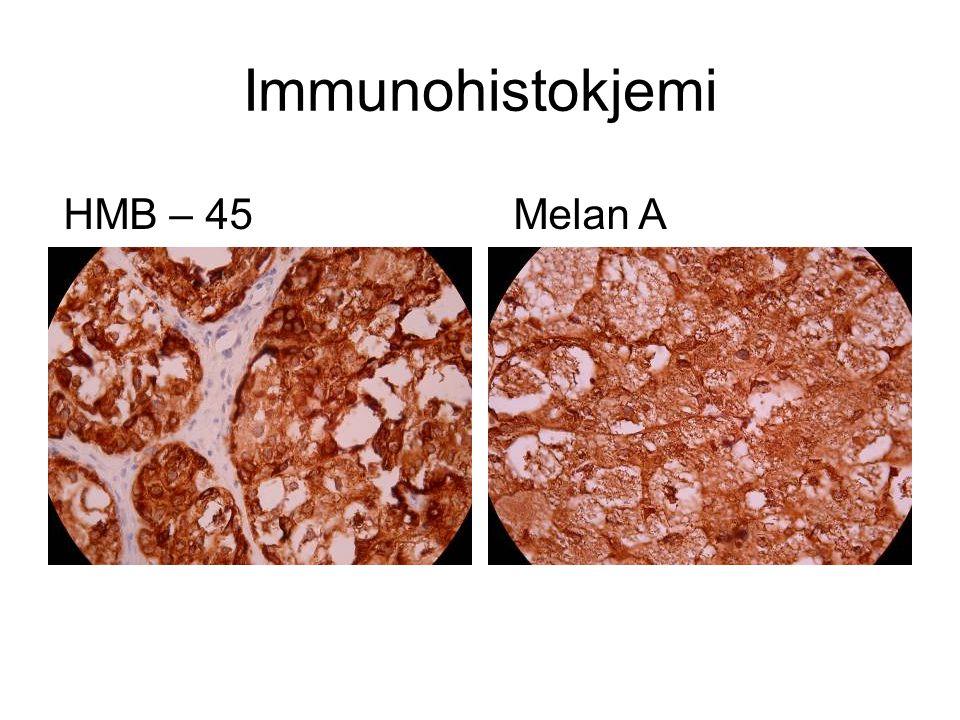 Immunohistokjemi HMB – 45 Melan A