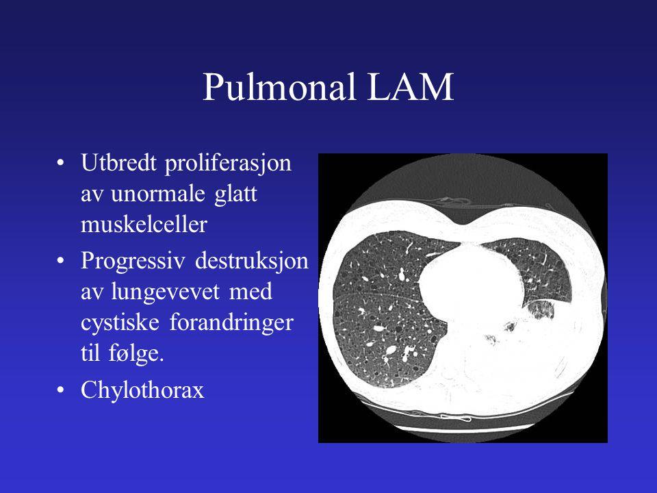Pulmonal LAM Utbredt proliferasjon av unormale glatt muskelceller
