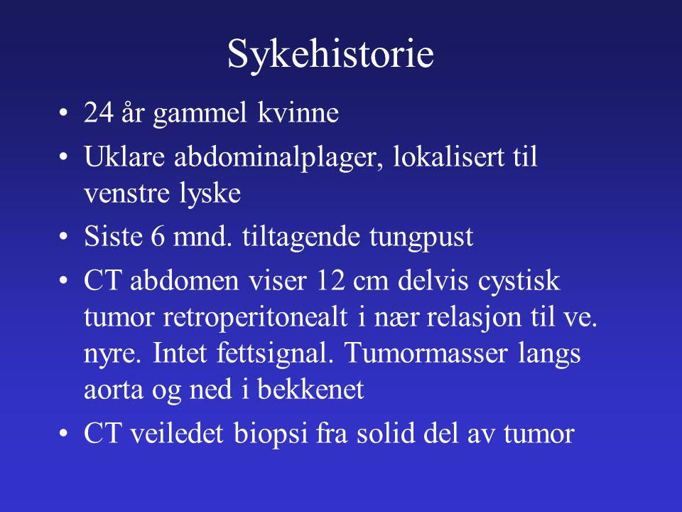 Sykehistorie 24 år gammel kvinne