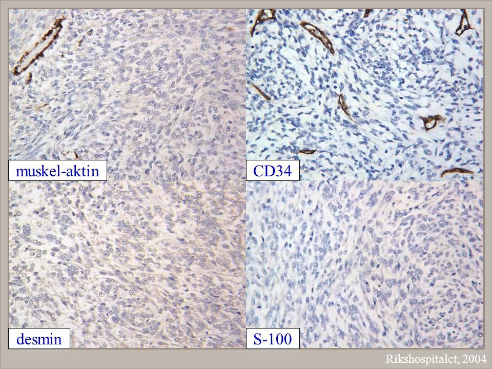muskel-aktin CD34 desmin S-100 Rikshospitalet, 2004