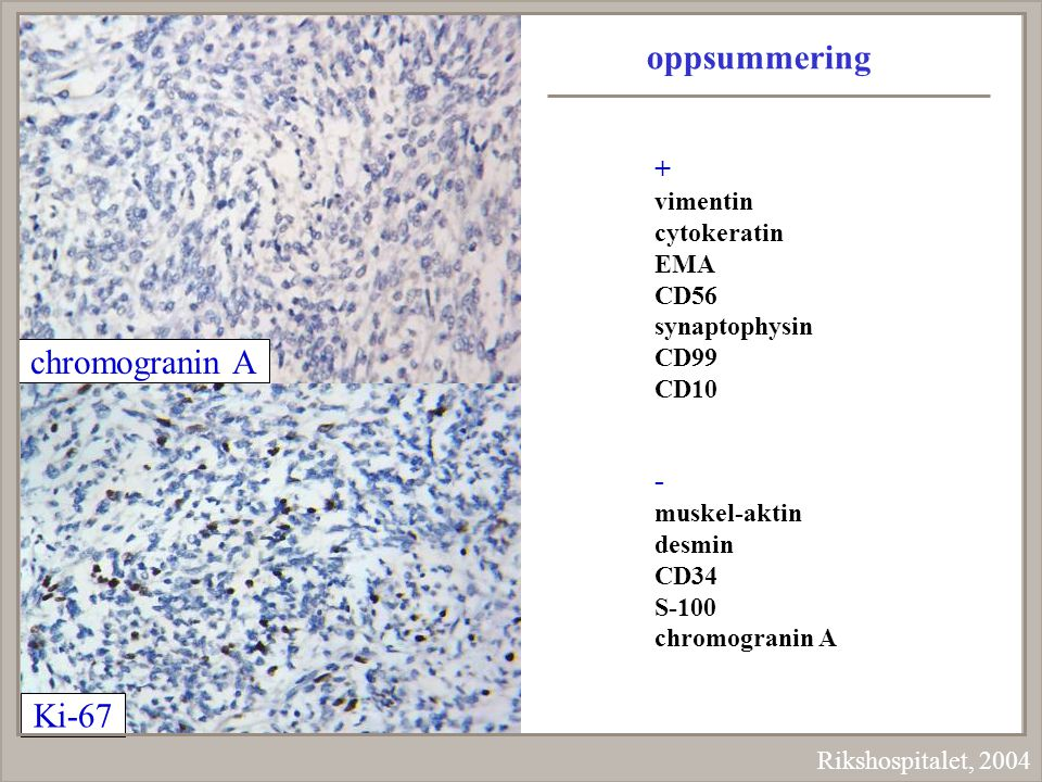 oppsummering chromogranin A Ki-67 + - vimentin cytokeratin EMA CD56
