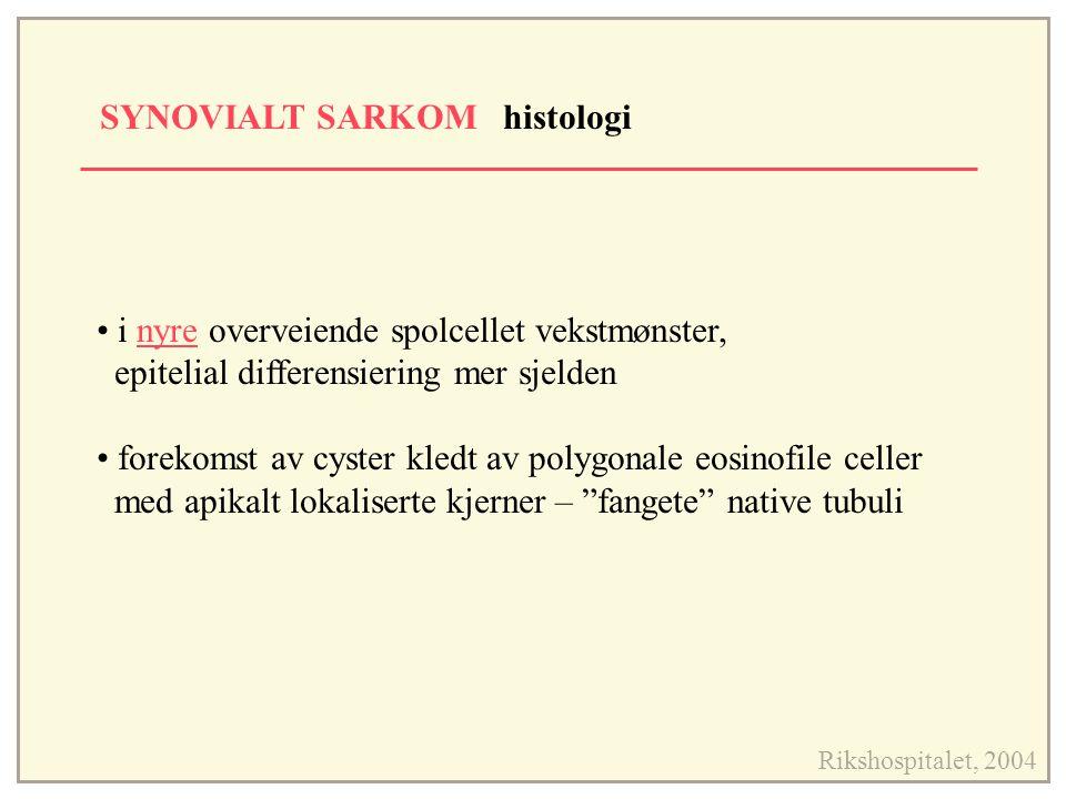 SYNOVIALT SARKOM histologi