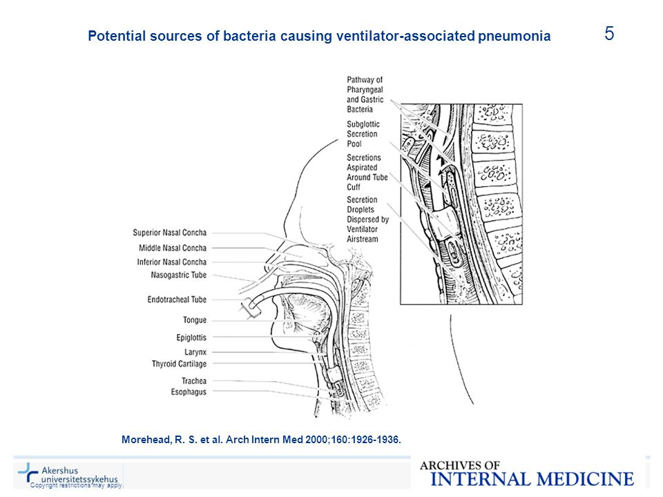 Potential sources of bacteria causing ventilator-associated pneumonia