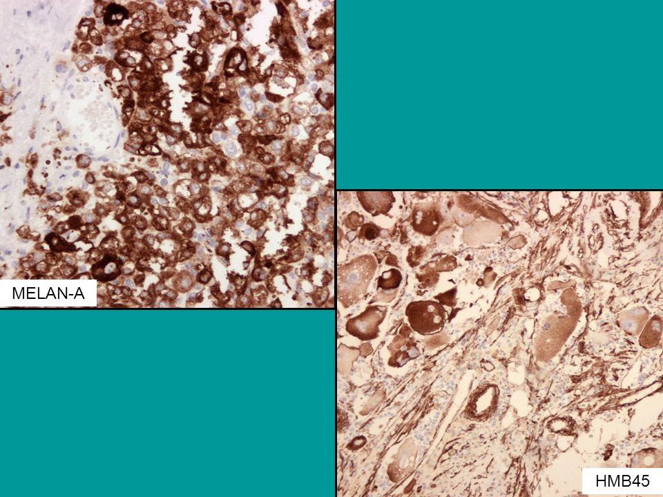 MELAN-A IHjkemisk var tumorcellene positive på melan-a, hmb45 HMB45