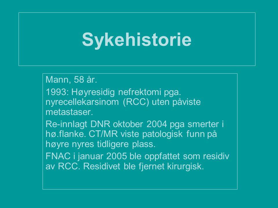 Sykehistorie Mann, 58 år. 1993: Høyresidig nefrektomi pga. nyrecellekarsinom (RCC) uten påviste metastaser.