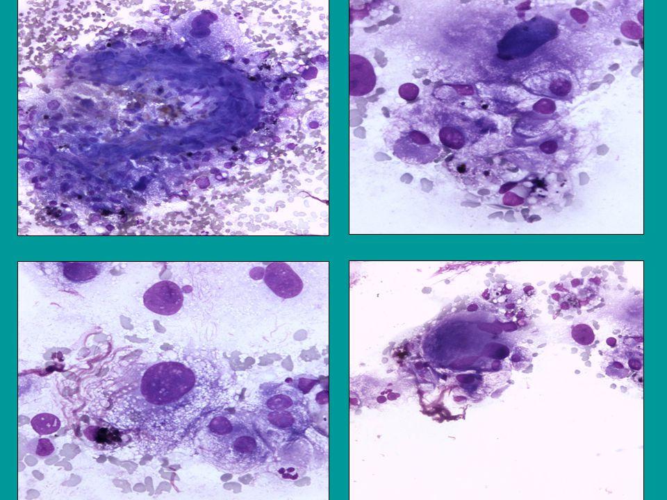 Dette er cellebilde fra fnac som viser store lyse celler med abuandant cyt og kjernepleomorfi, samt spsm m.