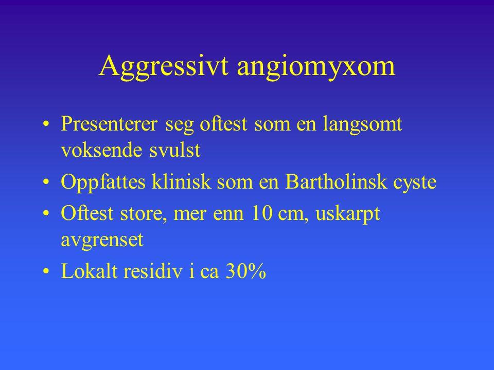 Aggressivt angiomyxom