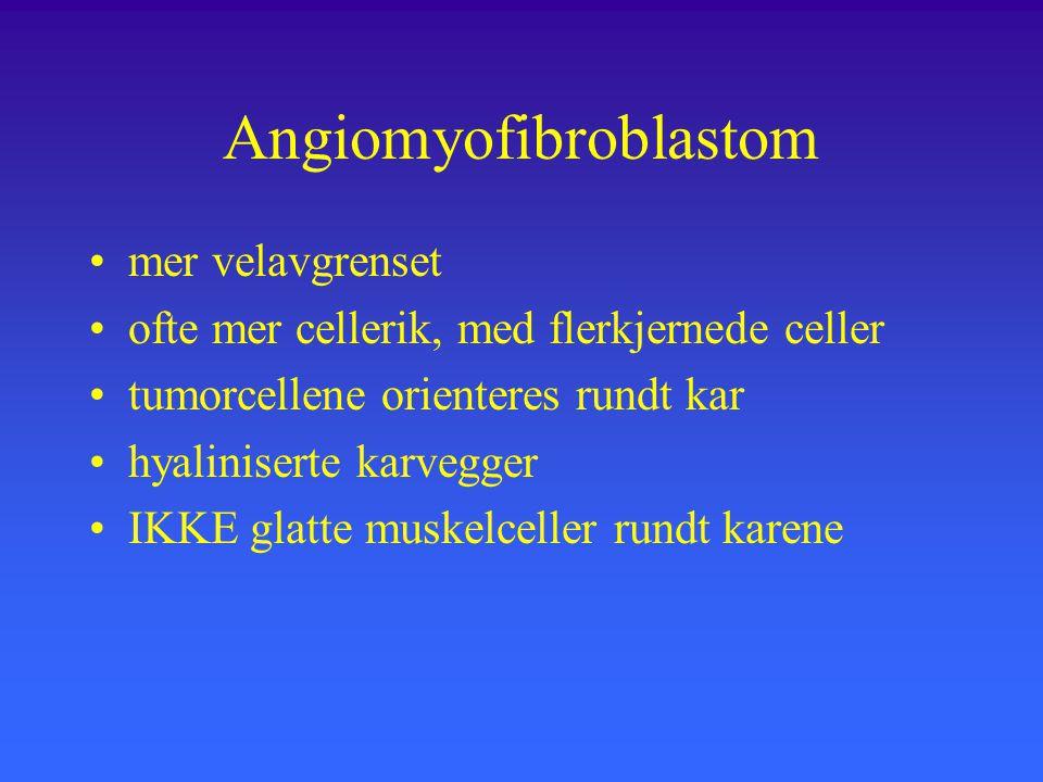 Angiomyofibroblastom