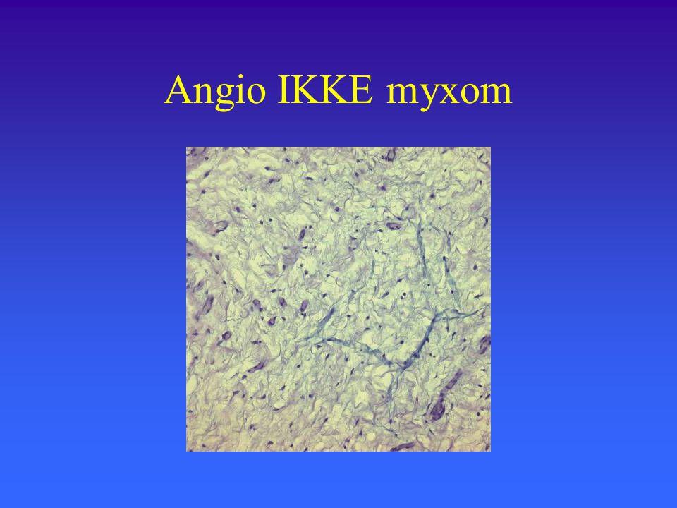 Angio IKKE myxom