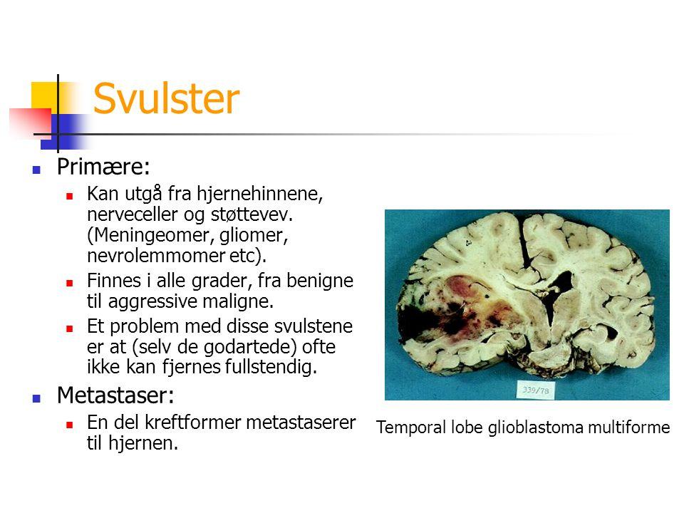 svulster i hjernen