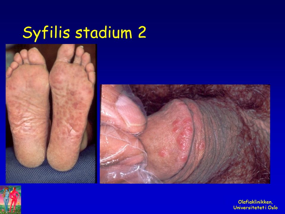 Syfilis stadium 2