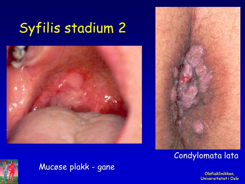 Syfilis stadium 2 Condylomata lata Mucøse plakk - gane