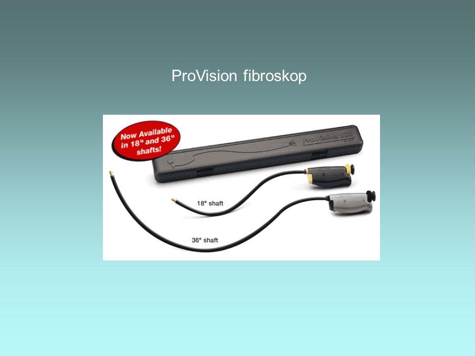 ProVision fibroskop