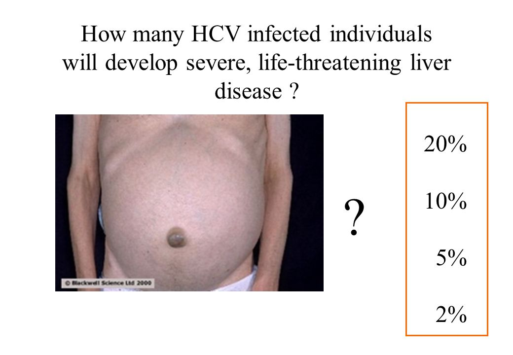 How many HCV infected individuals will develop severe, life-threatening liver disease