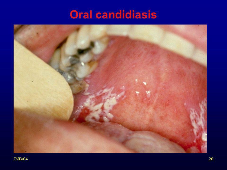 Oral candidiasis JNB/04