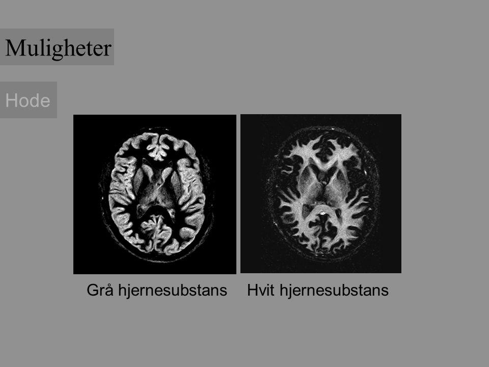 Muligheter Hode Grå hjernesubstans Hvit hjernesubstans