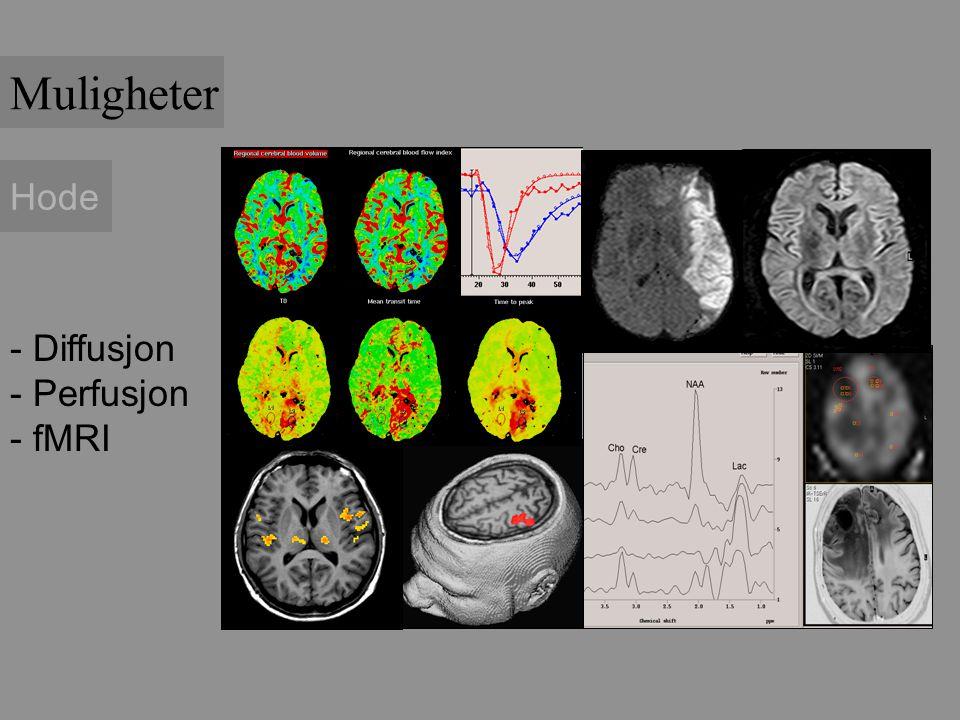 Muligheter Hode Diffusjon Perfusjon fMRI