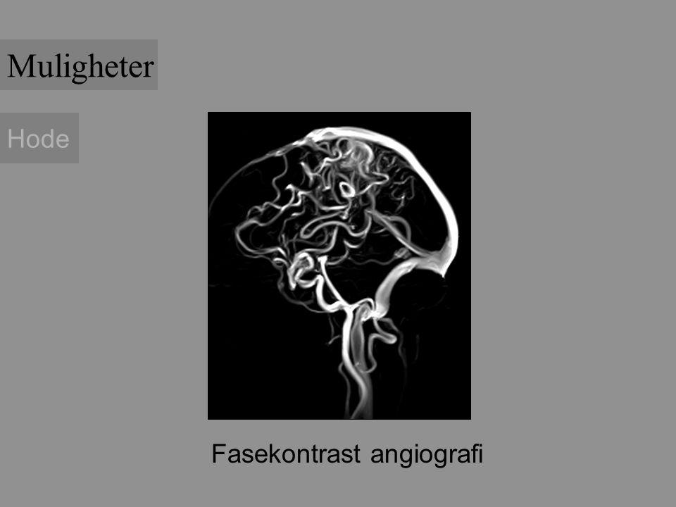 Fasekontrast angiografi