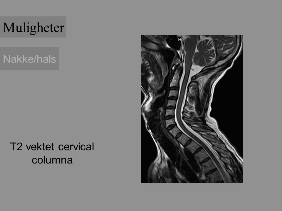 Muligheter Nakke/hals T2 vektet cervical columna