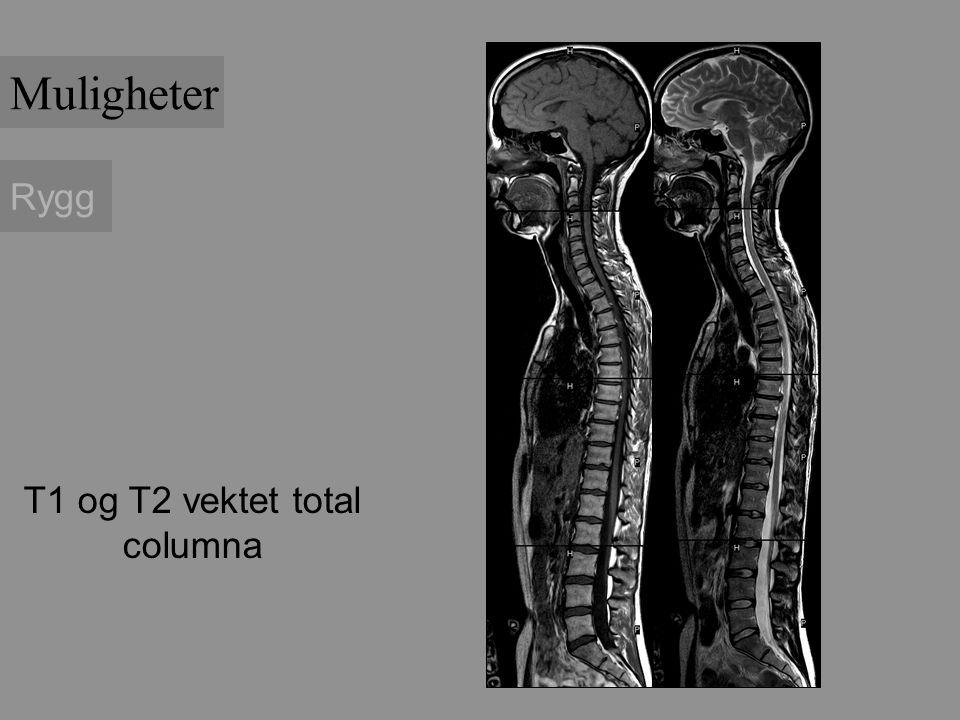 Muligheter Rygg T1 og T2 vektet total columna
