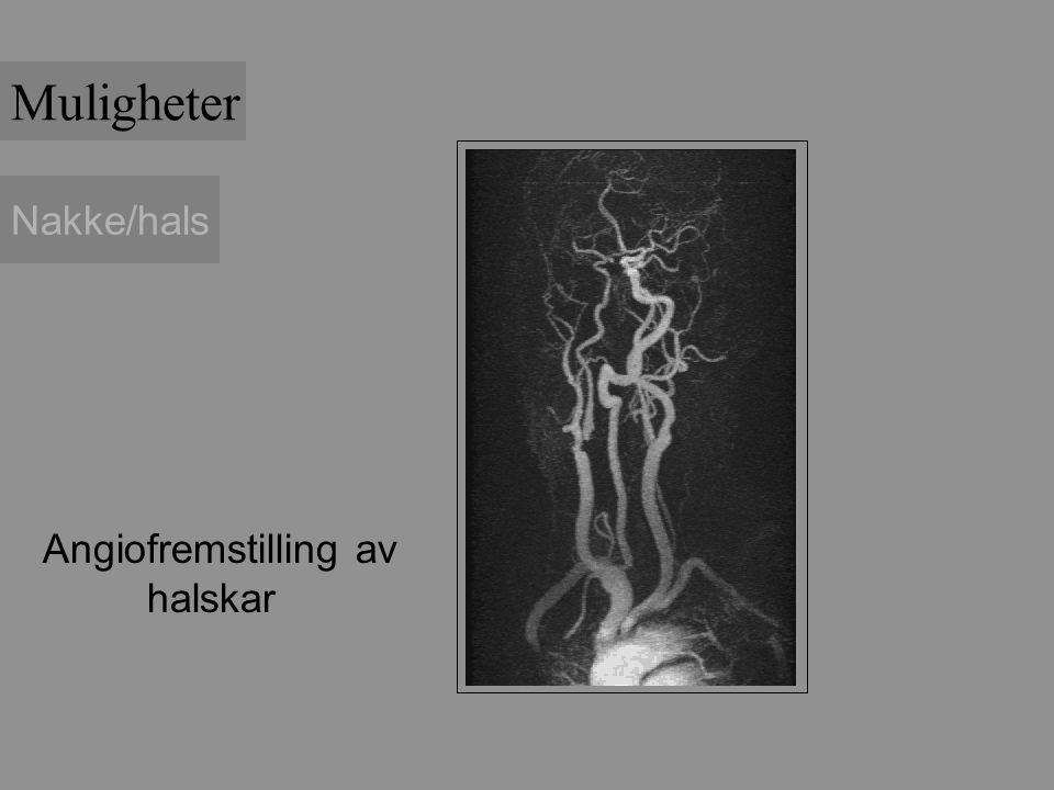 Muligheter Nakke/hals Angiofremstilling av halskar