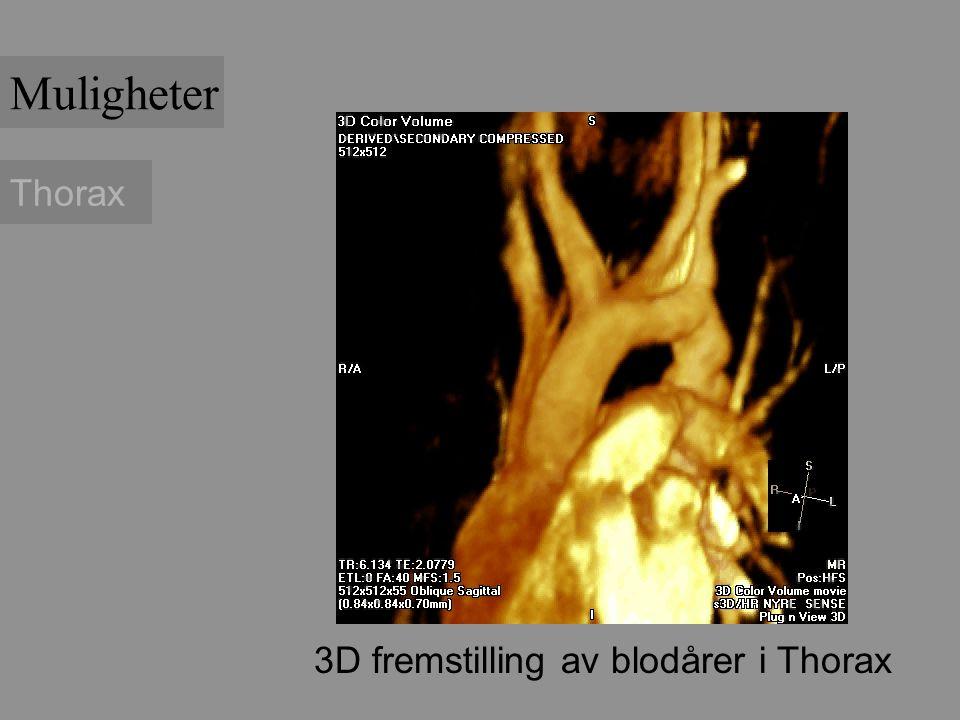 Muligheter Thorax 3D fremstilling av blodårer i Thorax