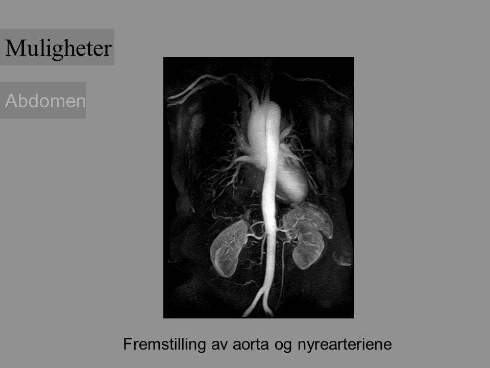 Fremstilling av aorta og nyrearteriene