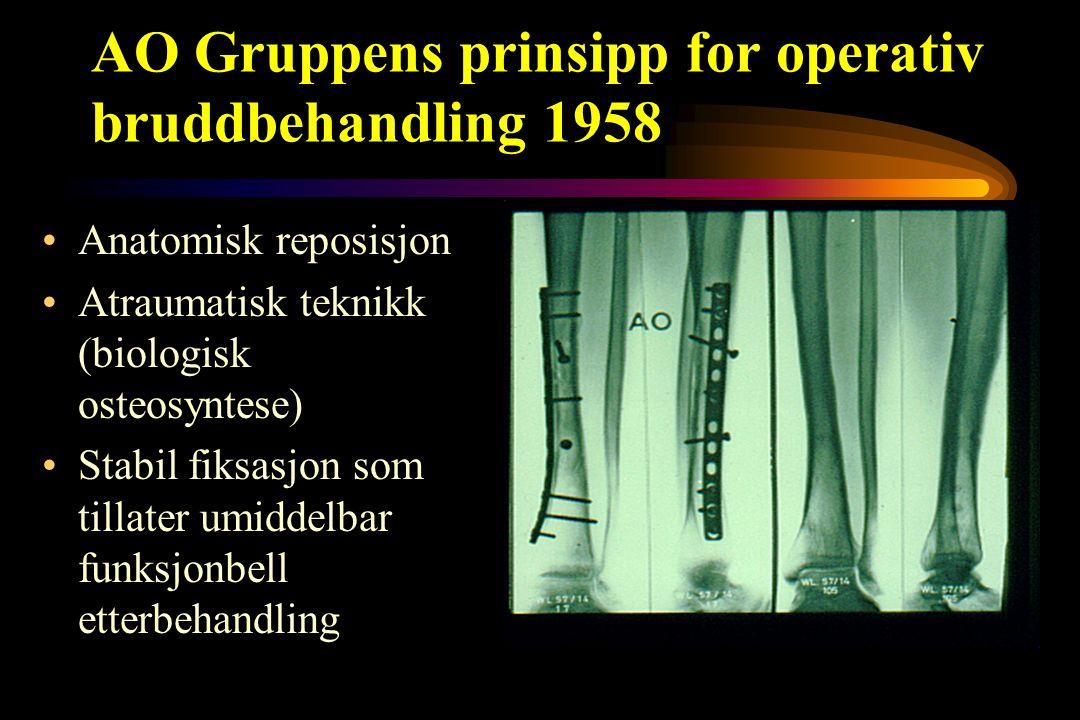 AO Gruppens prinsipp for operativ bruddbehandling 1958