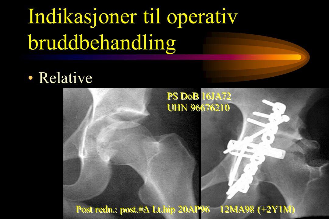 Indikasjoner til operativ bruddbehandling