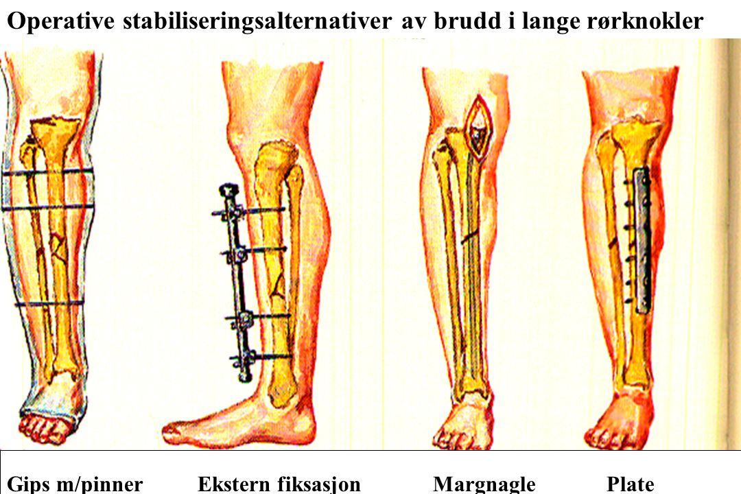 Operative stabiliseringsalternativer av brudd i lange rørknokler