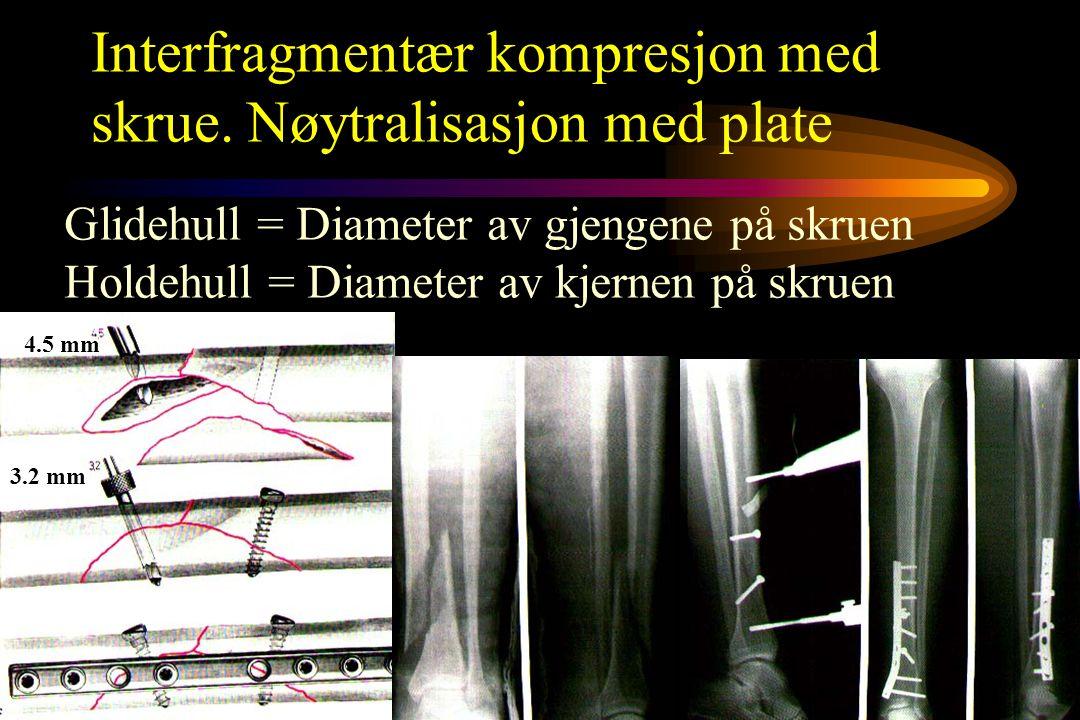Interfragmentær kompresjon med skrue. Nøytralisasjon med plate