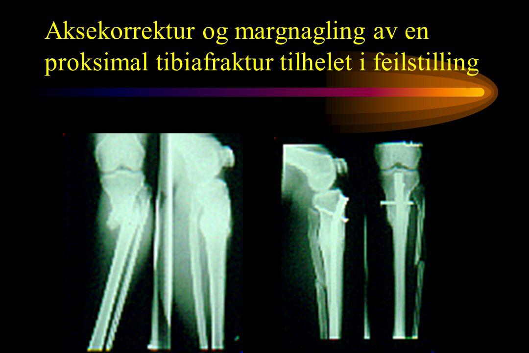 Aksekorrektur og margnagling av en proksimal tibiafraktur tilhelet i feilstilling