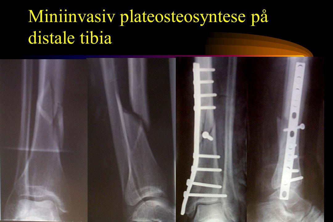 Miniinvasiv plateosteosyntese på distale tibia