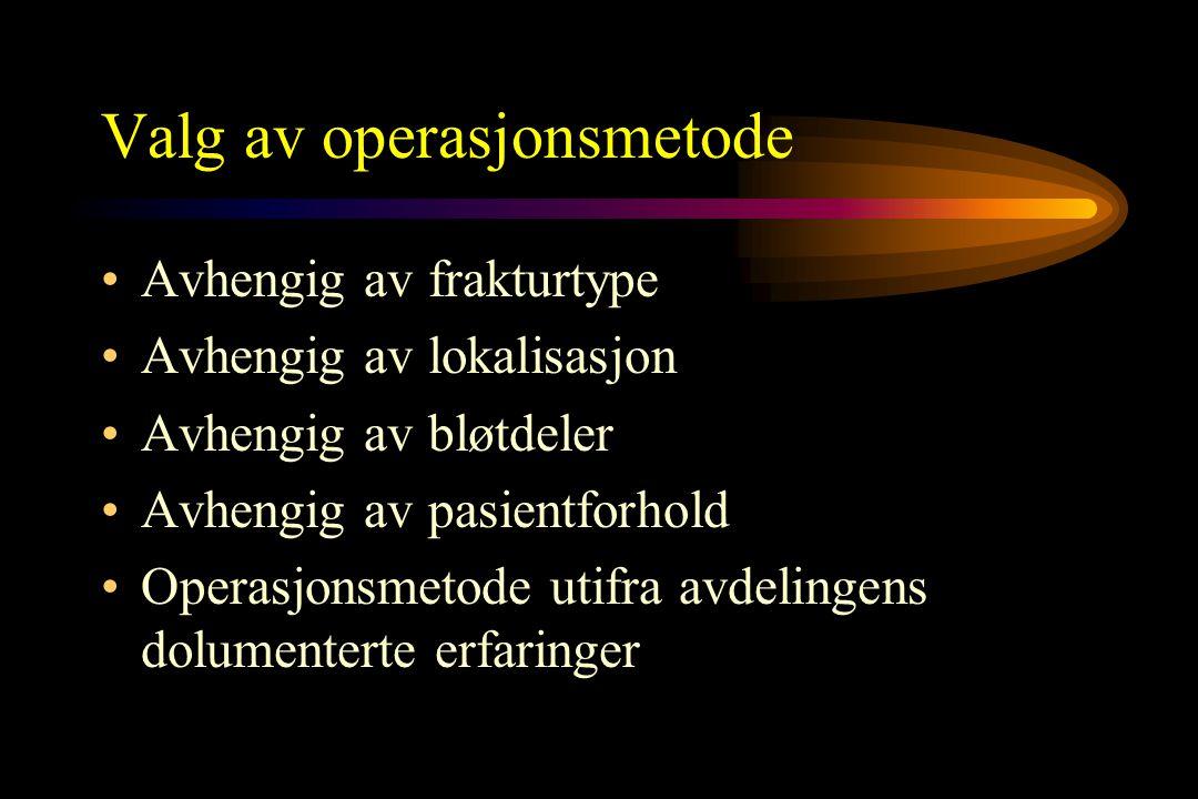Valg av operasjonsmetode