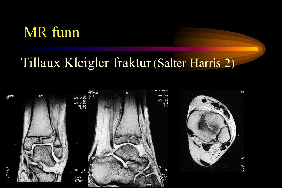 MR funn Tillaux Kleigler fraktur (Salter Harris 2)
