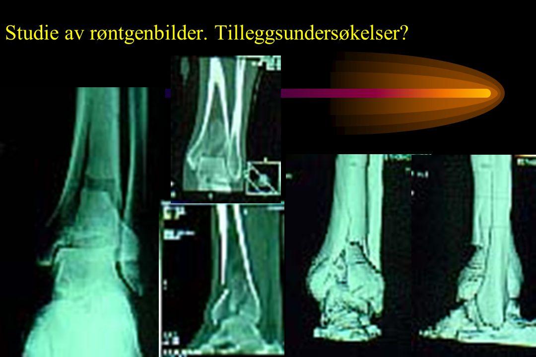 Studie av røntgenbilder. Tilleggsundersøkelser