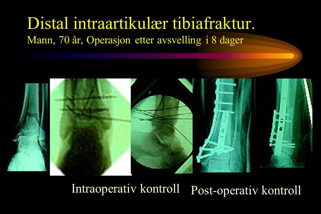 Distal intraartikulær tibiafraktur