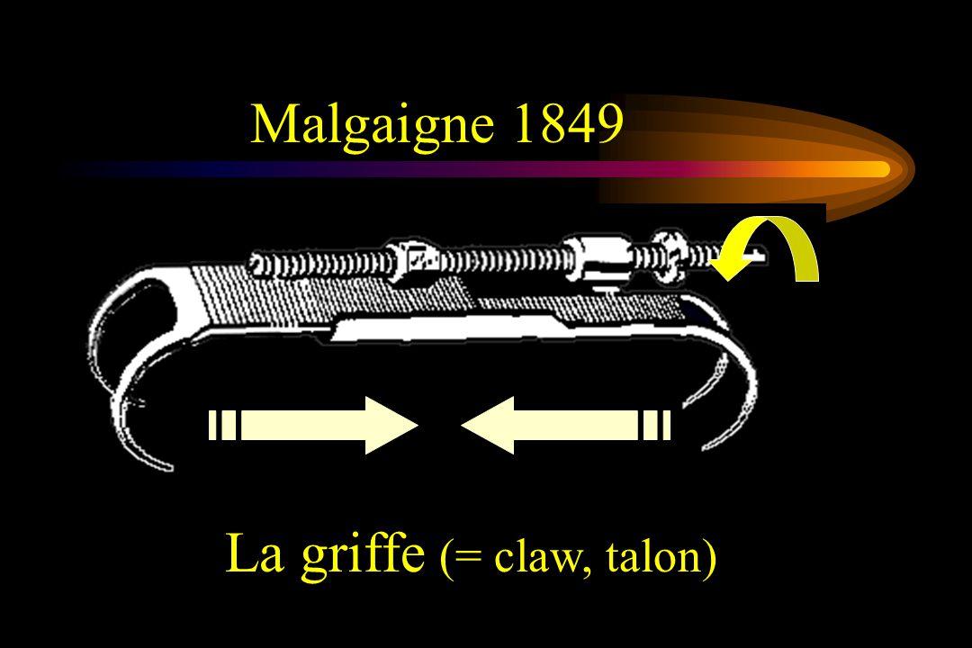 Malgaigne 1849 La griffe (= claw, talon)