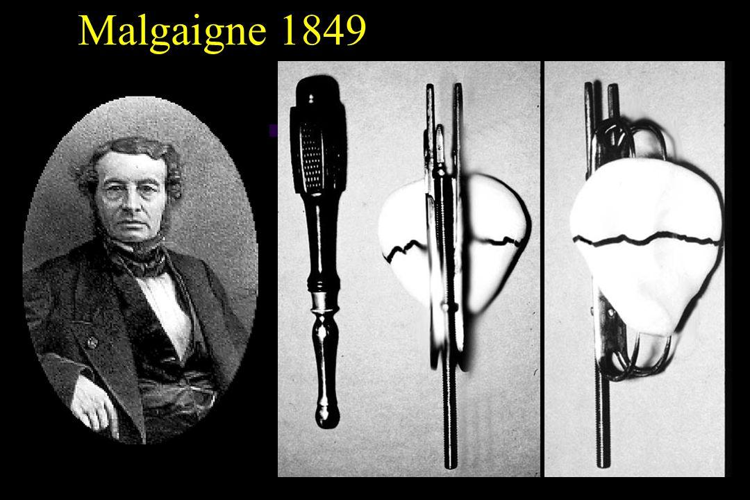 Malgaigne 1849