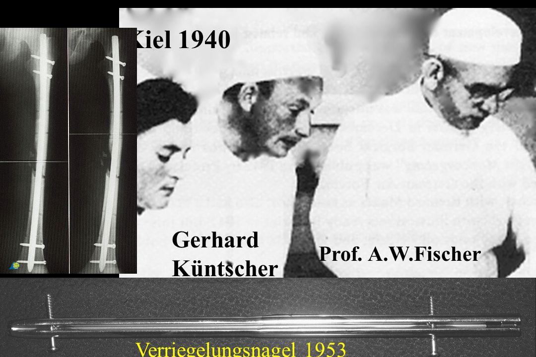 Kiel 1940 Gerhard Küntscher Prof. A.W.Fischer Verriegelungsnagel 1953