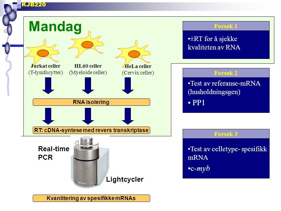Mandag PP1 c-myb ±RT for å sjekke kvaliteten av RNA