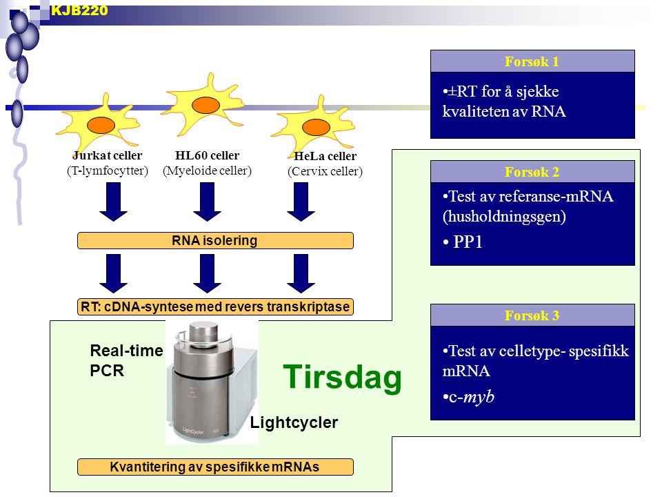 Tirsdag PP1 c-myb ±RT for å sjekke kvaliteten av RNA