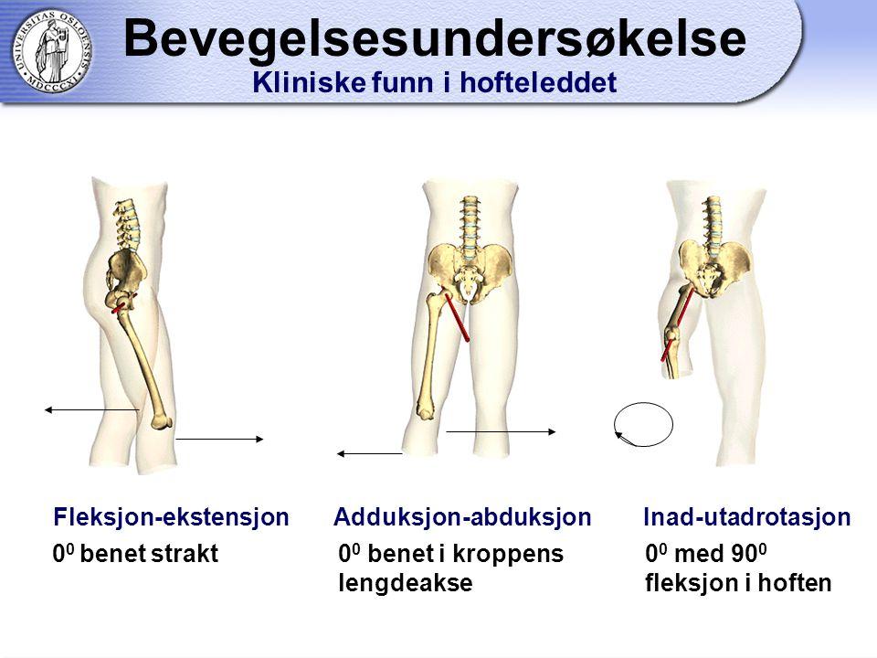 Bevegelsesundersøkelse Kliniske funn i hofteleddet