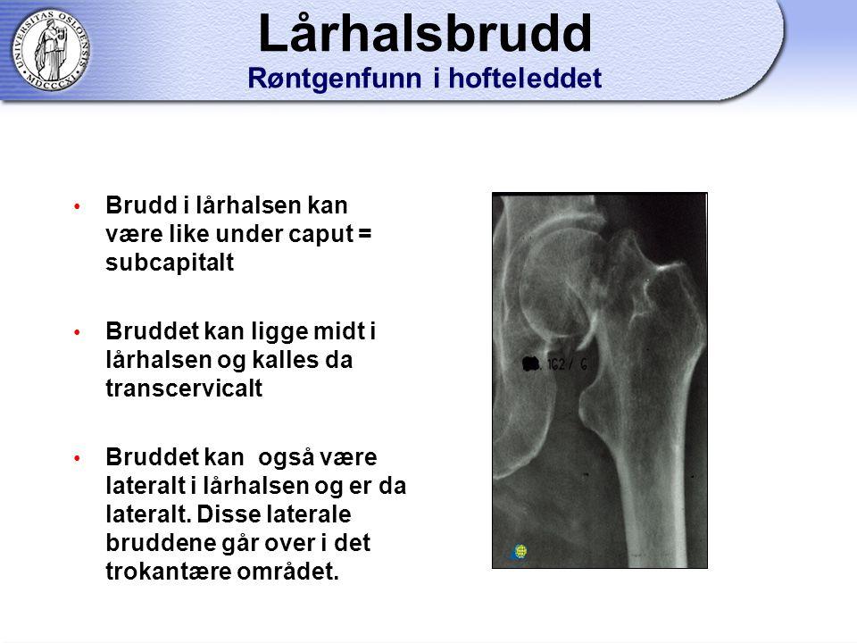 Lårhalsbrudd Røntgenfunn i hofteleddet